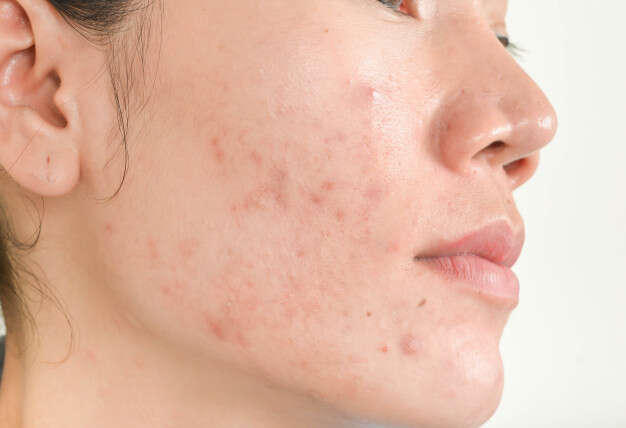 Acne .. between facts and myths